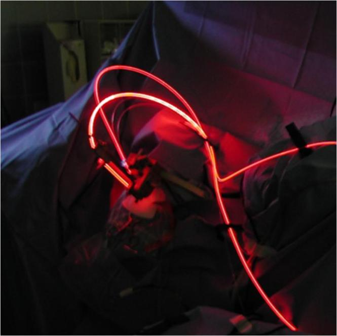 Medical laser technology innovations provide new, less-invasive light-based treatments. Credit: R. Sroka, et al., dx.doi.org/10.1117/1.JBO.20.6.061110)