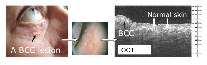 An example of nodular BBC lesion and its OCT image. The image in between shows where the OCT scan was performed. Credit: M. Mogensen et al 2009 (5).