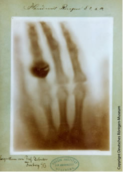 First recorded radiography. The hand of Röntgen's wife, Anna Bertha Röntgen.