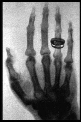 Radiograph of Wilhelm Rontgen' wife's left hand, obtained by him on December 22, 1895.
