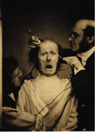 Electrophysiological Experience, Salpêtrière hospital, Guillaume de Duchenne, 1852-1856.