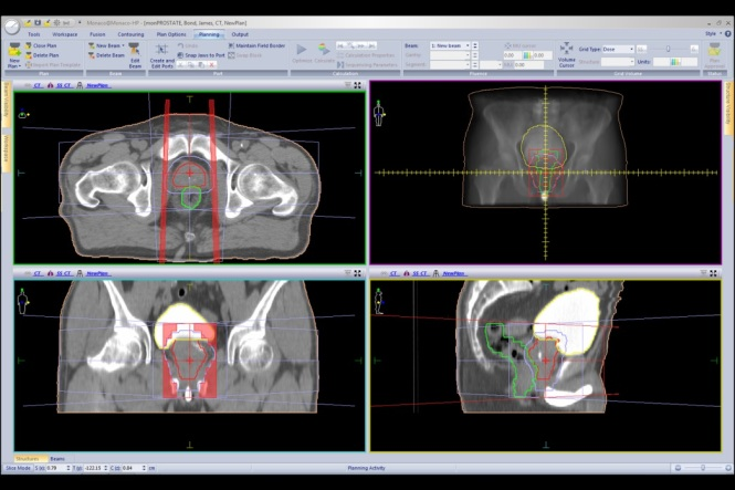 Treatment plan for prostate cancer. Credit: Elekta.com.